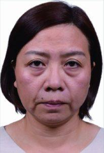 術前 皮膚老化之後,會顯得鬆垮、下垂,整個人看來疲累不堪。業者提供